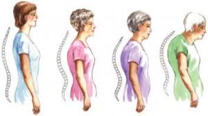 Οστεοπορωτικά σπονδυλικά κατάγματα