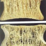οστεοπορωτικά κατάγματα σπονδυλικής στήλης