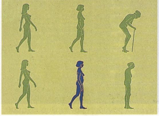 Οστεοπόρωση: νόσος των οστών