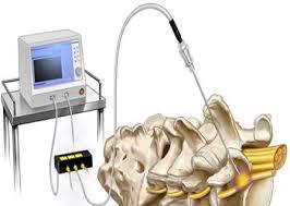 διαδερμική νευρόλυση με ραδιοσυχνότητα
