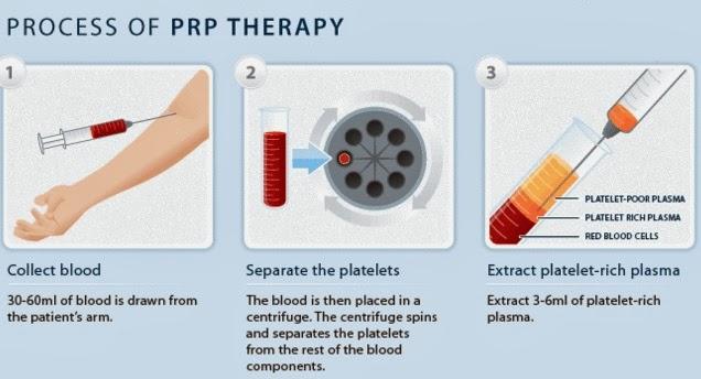 prp θεραπεία