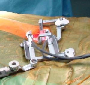 Μικροεπεμβατικό χειρουργείο-Άγκιστρα