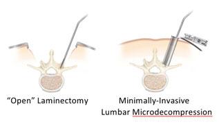 σπονδυλική στένωση-μικροεπεμβατική τεχνική
