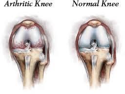 αρθρίτιδα του γόνατος