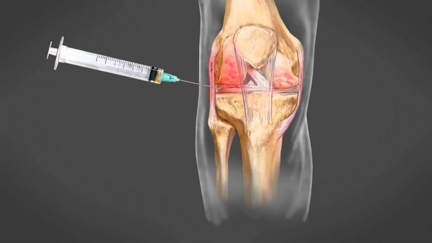 prp για την αρθρίτιδα του γόνατος