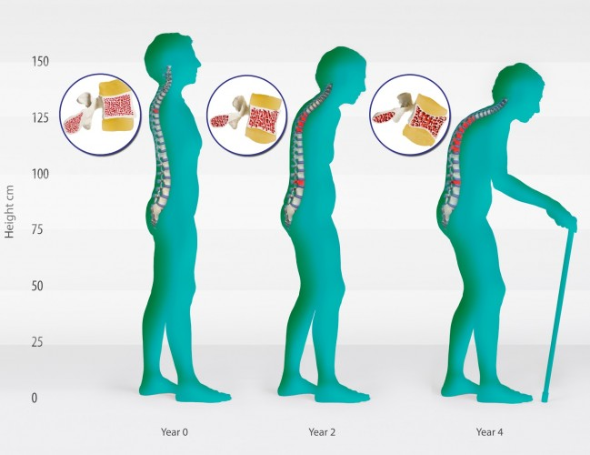 ερωτήσεις για την οστεοπόρωση