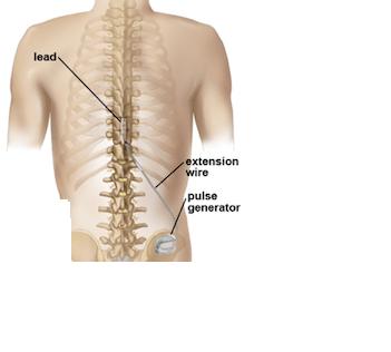 νευροδιέγερση νωτιαίου μυελού